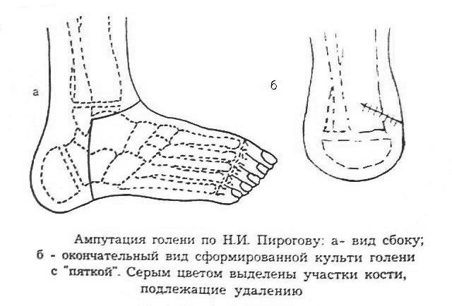 csontritkulásos kenőcsrel