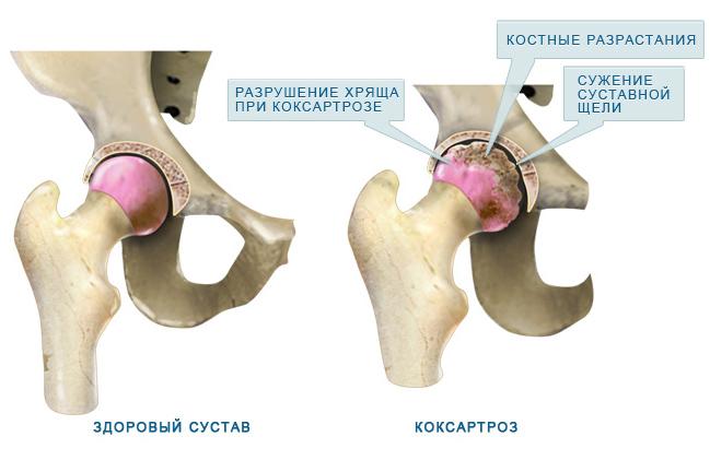 az artrózis kezelése a movalis-nal a térdszalag károsodásának okai