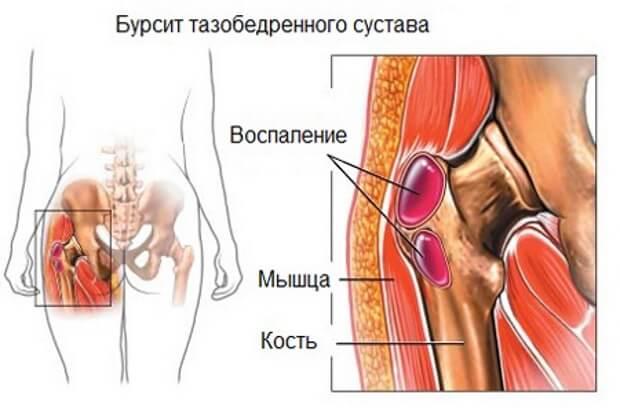 mi köze a térdízület fájdalmához artróziskezelő kapszulák