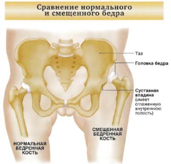 az artrózis kezelése a movalis-nal)